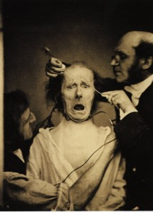 Electrostimulation of facial muscles