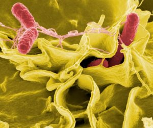 Electron micrograph of Salmonella bacteria. Salmonella poisoning happens because the bacteria themselves are toxic. (National Institute of Allergy and Infectious Diseases)